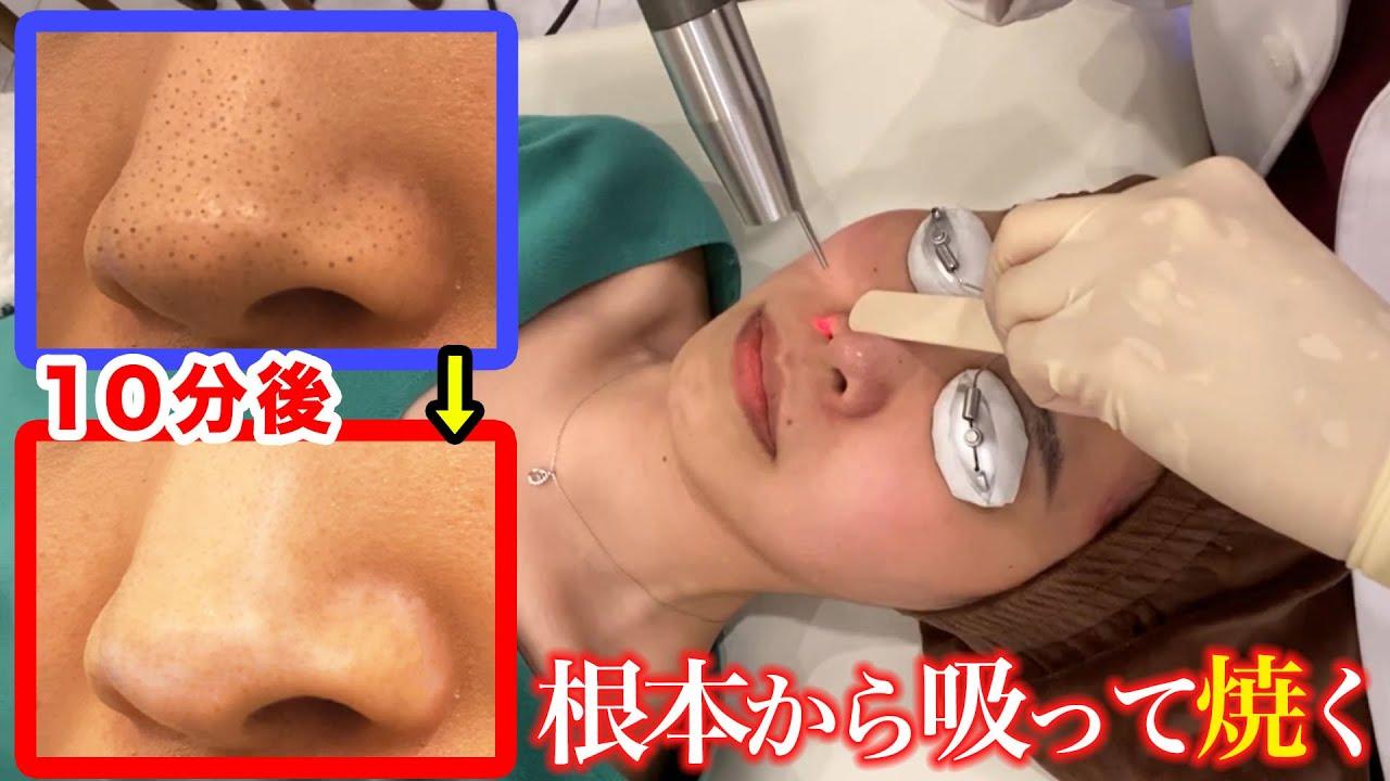 【いちご鼻】ブラックヘッド治療に潜入調査!毛穴黒ずみ角栓をごっそり取る吸引手術をガチレビュー(本気で完治したい人へ)