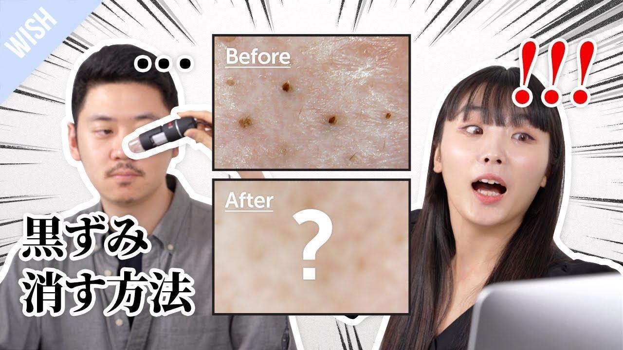 【角栓】 鼻の黒ずみを刺激なく、効果的に治す方法とは?