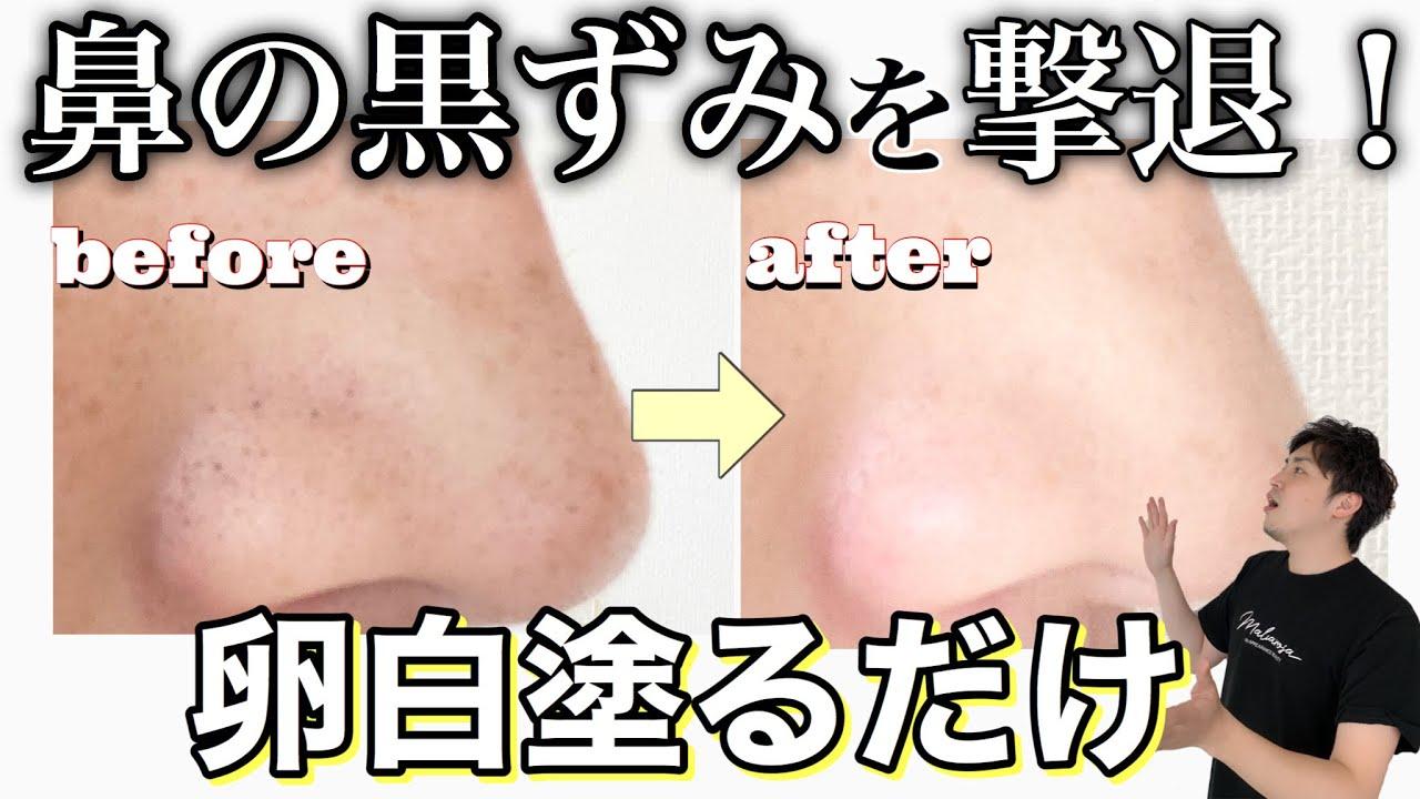 【いちご鼻】超簡単に鼻の黒ずみを取る方法!【black heads】